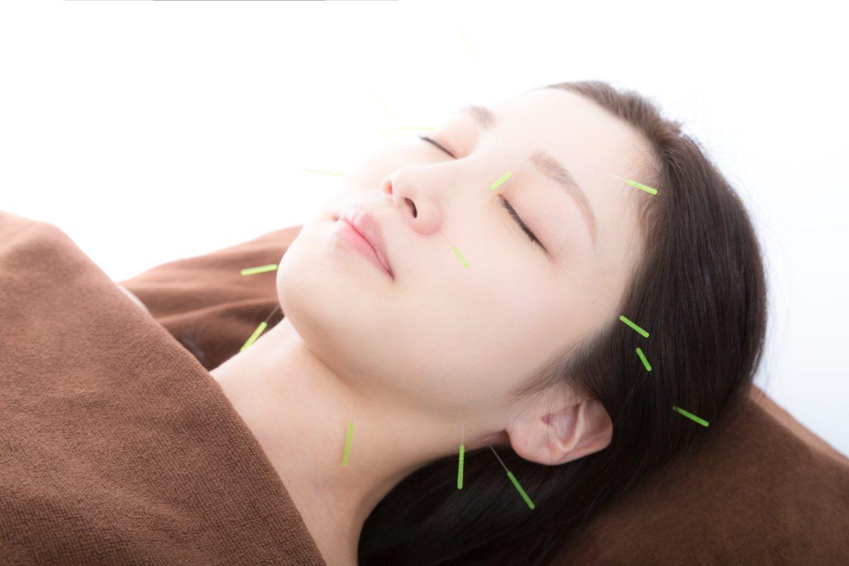 顔鍼(イメージ)……皮膚の細胞を活性化し、血流を促進して肌に潤いを与えます